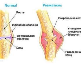 Причини, симптоми і ознаки ревматизму ніг, лікування в домашніх умовах фото