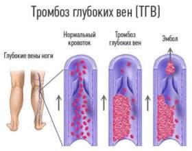 Причини, симптоми і способи лікування тромбозу глибоких вен нижніх кінцівок фото
