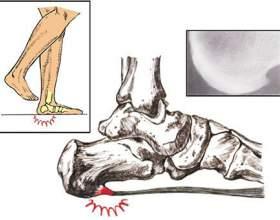 Причини, симптоми і способи терапії п`яткової шпори фото