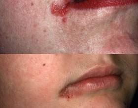 Причини тріщин в куточках губ, лікування заїду в кутах рота фото