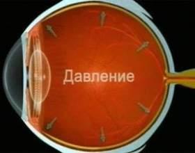 Причини виникнення глаукоми фото