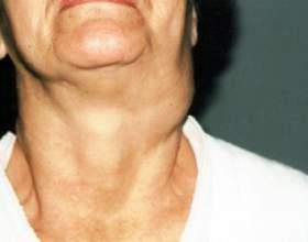Причини виникнення шишки на шиї фото