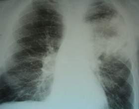 Ознаки пневмонії на рентгені фото
