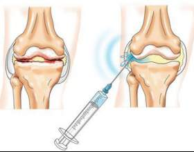 Як позбутися мозолів на ногах? фото