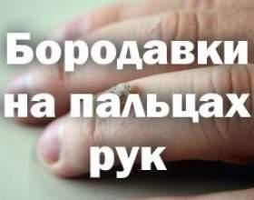 Приховані причини утворення бородавок на пальцях рук фото