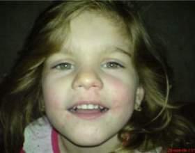 Стрептодермія і її лікування у дітей фото