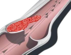 Тромбофлебіт нижніх кінцівок: причини, симптоми, лікування фото