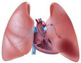 Тромбоемболія легеневої артерії - симптоми, діагностика та лікування фото