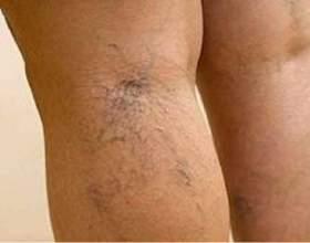 Тромбоз підколінної вени: як його розпізнати і лікувати? фото
