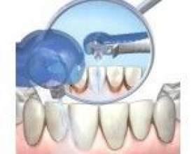 Видалення зубного нальоту ультразвуковим скалером фото