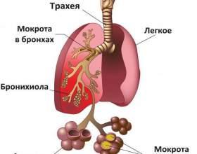 У чому відмінності бронхіту і пневмонії фото