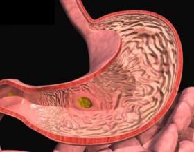 Види і лікування катарального гастриту фото