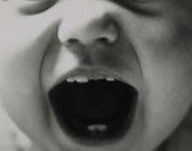 Вік і симптоми ріжучих зубів фото