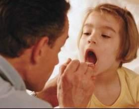 Захворювання грибкова ангіна фото