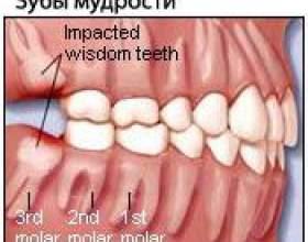 Зуб мудрості - проблеми росту фото